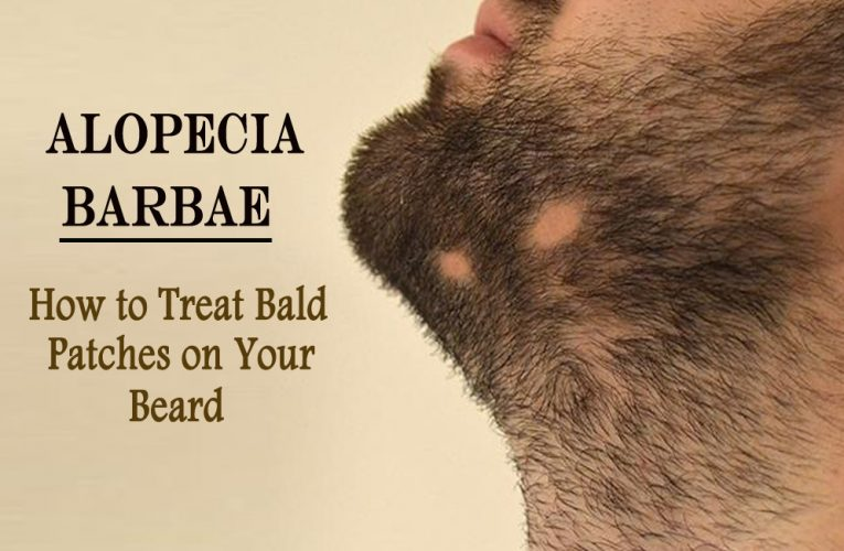 Alopecia Barbae: How to Treat Bald Patches on Your Beard